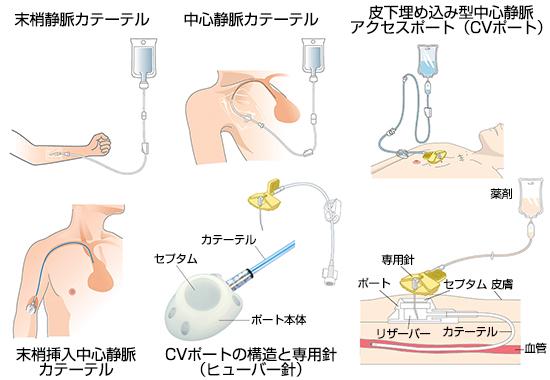 用語 cv 医療